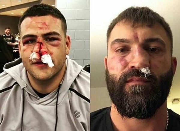 Не для слабкодухих. Орловський і Туйваса після UFC 225 (ФОТО)