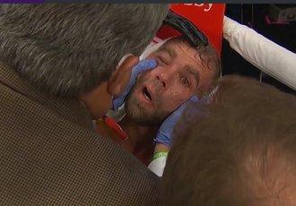 Сондерс опинився в лікарні після побиття від Альвареса