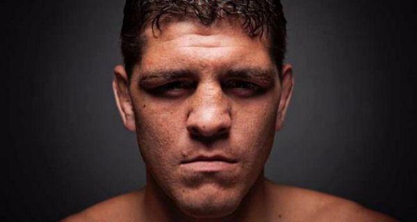 Нік Діас не повернеться в UFC раніше квітня 2019-го