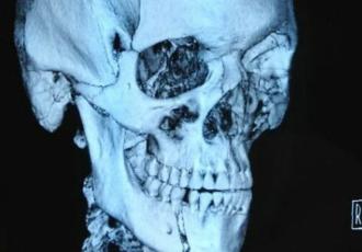 Знімок зламаної щелепи Штруве (ВІДЕО)